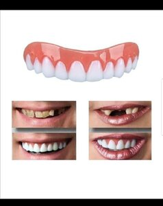 Used Perfect smile veneer teeth 2pcs New in Dubai, UAE
