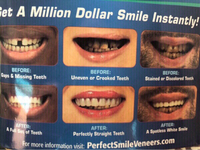 Used Veneers PERFECT SMILE Teeth Cover  in Dubai, UAE