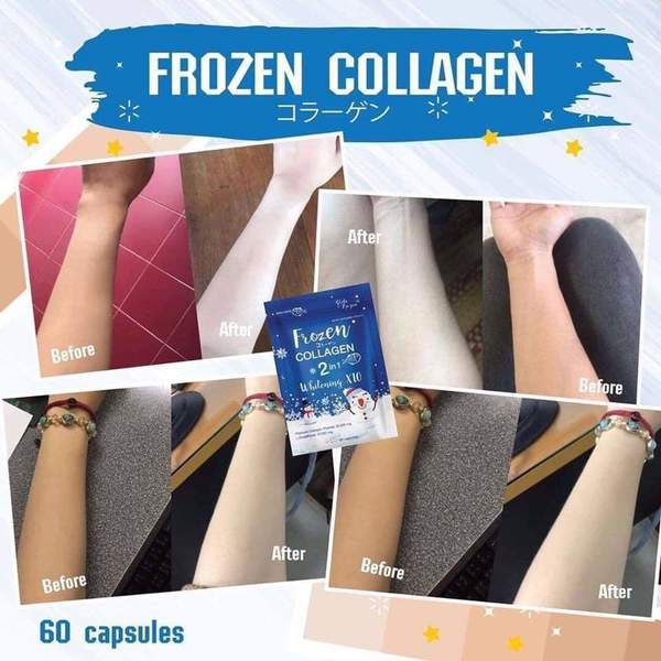 Used FROZEN COLLAGEN 1PACK in Dubai, UAE